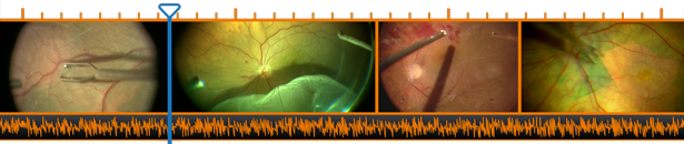 Surgical Video Editing Timeline with Retina Images